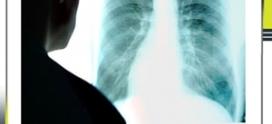 فحص الصدر بالأشعة المقطعية (CT) أفضل تشخيص لمرض کورونا